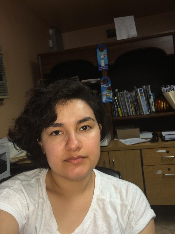 Does my face look puffy? I have thyroid problems and one of the symptoms is retaining water?