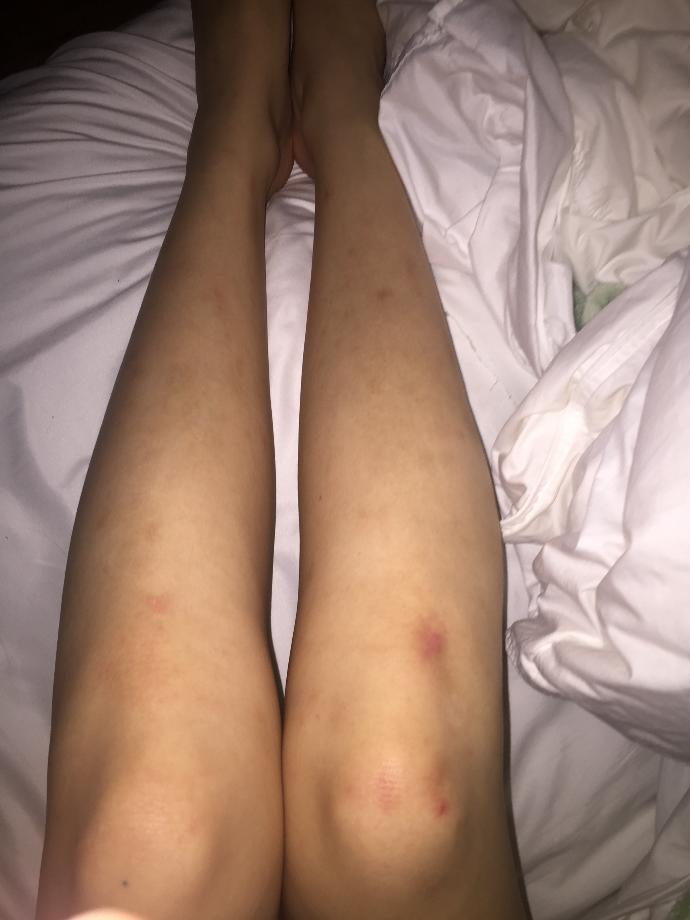 Scars on legs (pictures). Ugly? Unattractive?