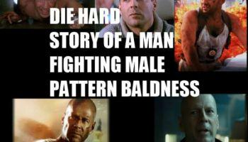 What are the best ways to prevent or combat Male pattern baldness?