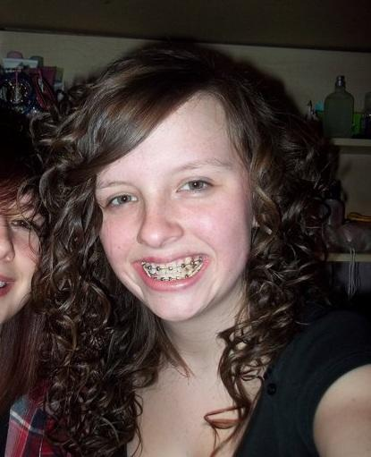 I've just had braces fitted and I hate them, be honest, do they look horrible?