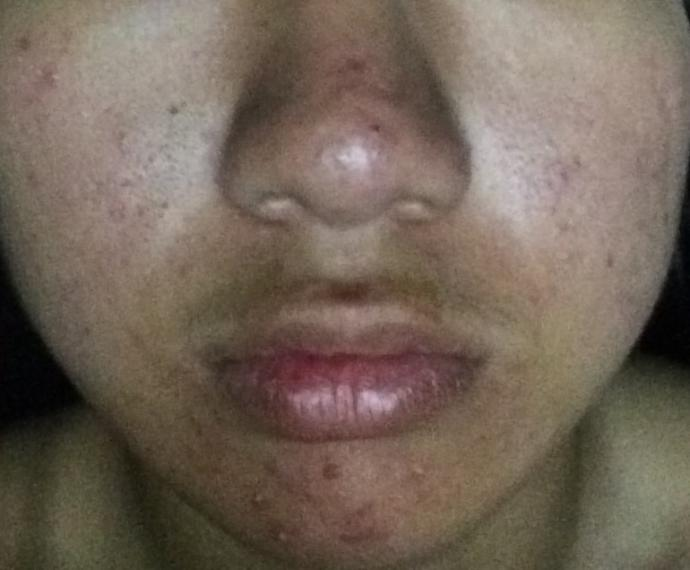 Is my acne bad????