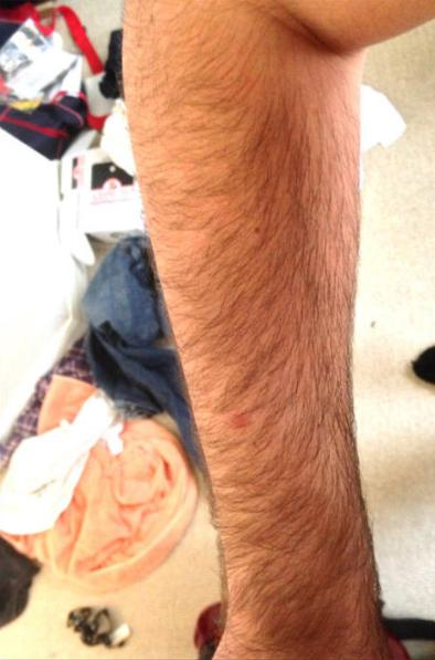 Girls, are hairy arms on guys a turn off?