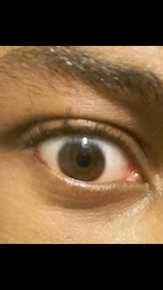 Are my eyes nice or pretty or normal?