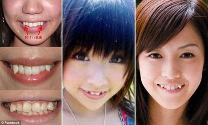 Can sharp canine teeth look hot?