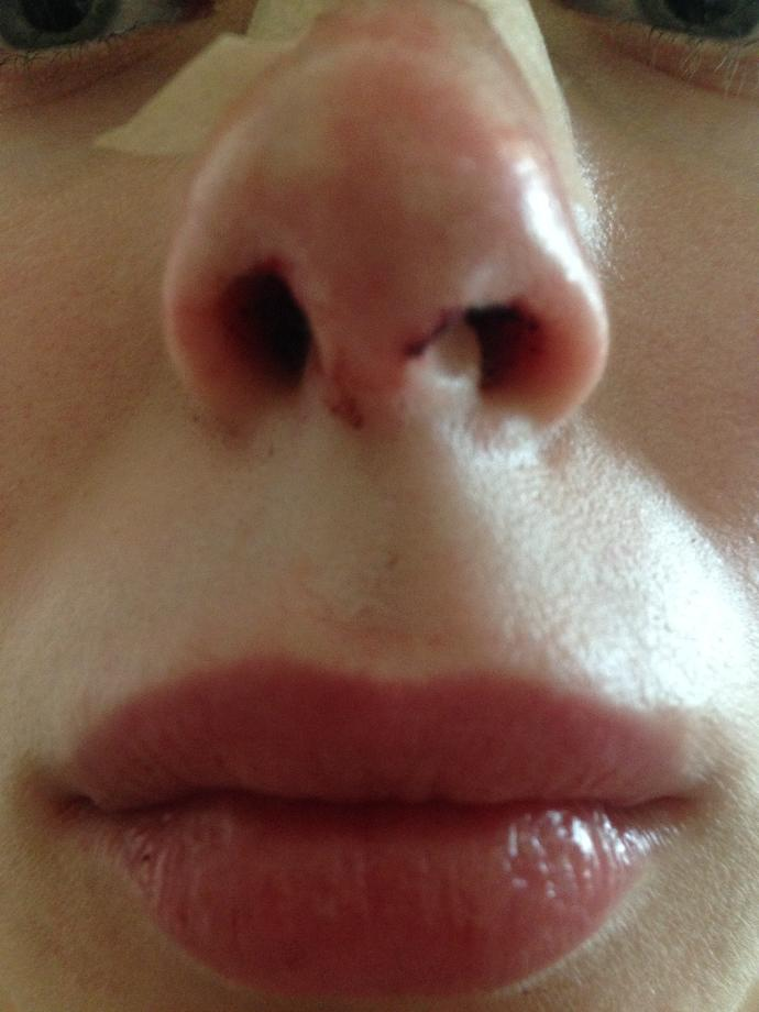Uneven nostrils after hump removal surgery? Why?