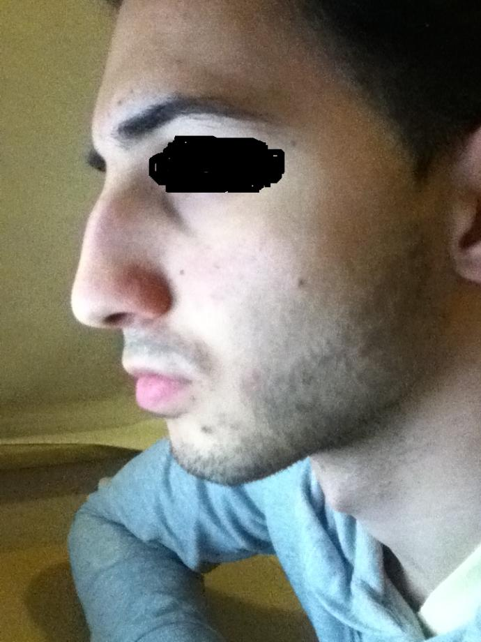 Should I get nose surgery or not?