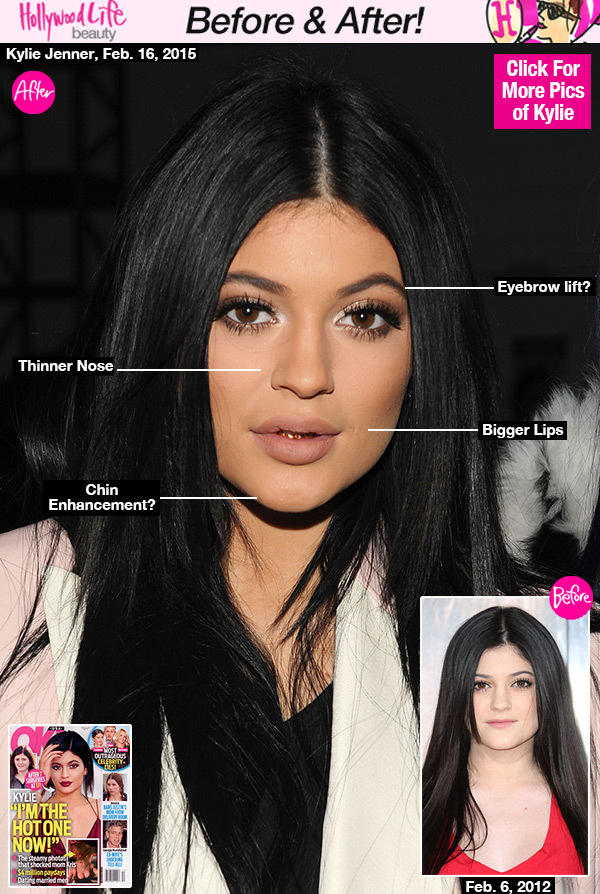Do you think Kylie Jenner is pretty? Considering all of the plastic surgery?