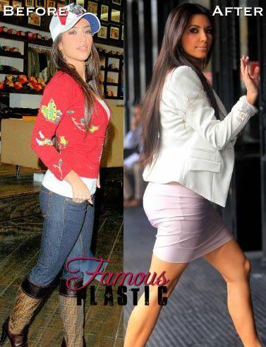 Do you think Kim Kardashian is pretty?