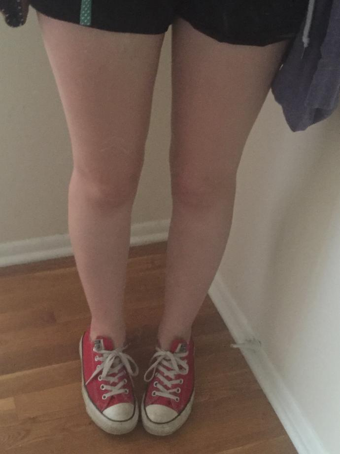 Do my legs look bad? Or fat?
