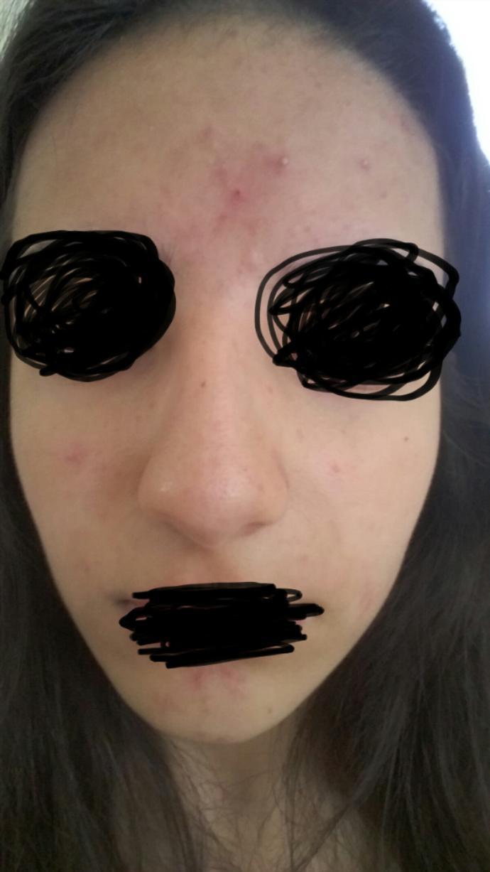 Is my skin so bad?