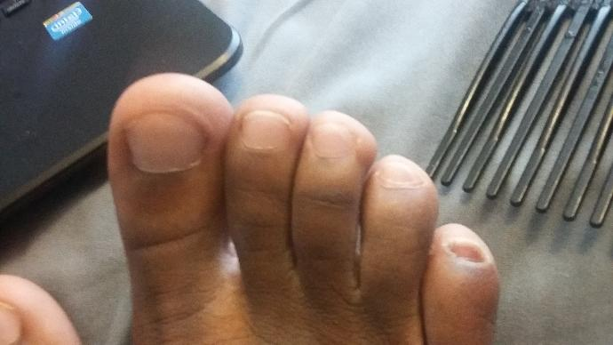 Are my toes ugly, the pinky toenail looks kinda ugly I used to pick at them?