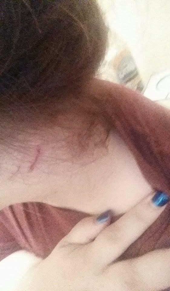 I was assaulted by my boyfriend's sister and now we don't know what to do?
