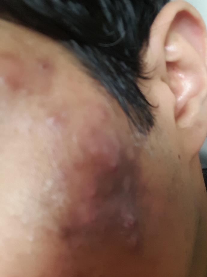 Acne scars, how can i get rid of?