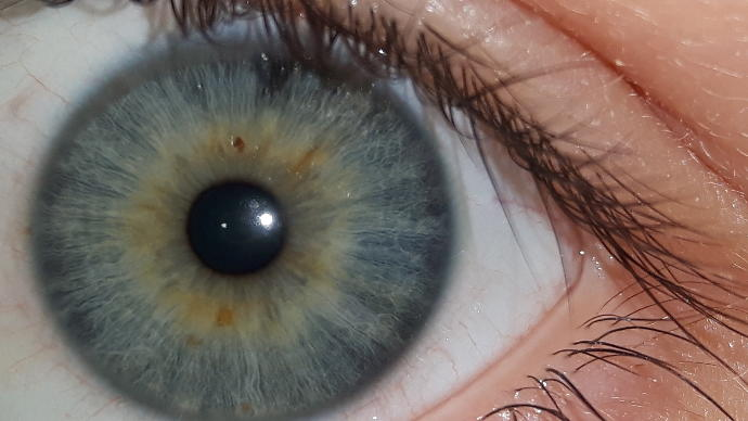 What eye color is this?