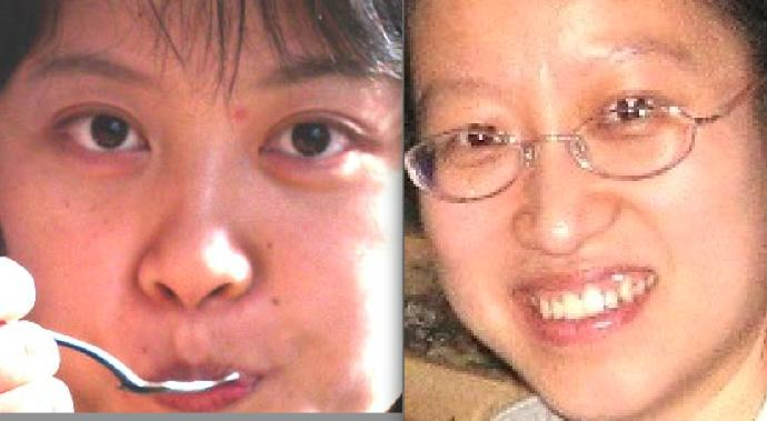 How many of you think a small flat nose suits an Asian girl's face more?