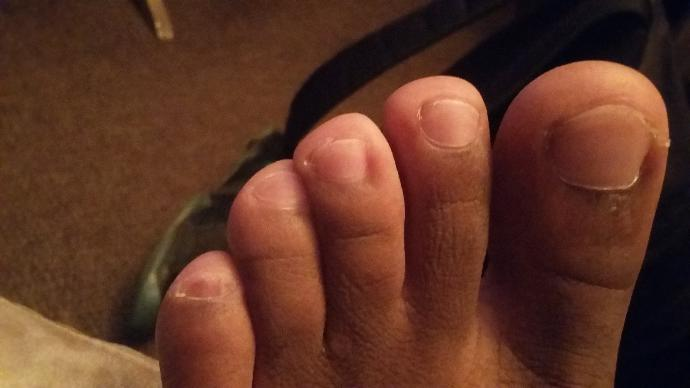 My pinky toes are ugly asf lol?