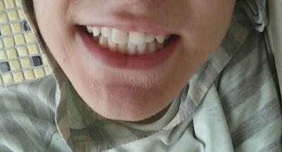 Do i need braces guys?