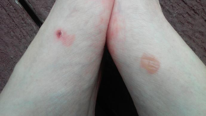 What to do about a blister?