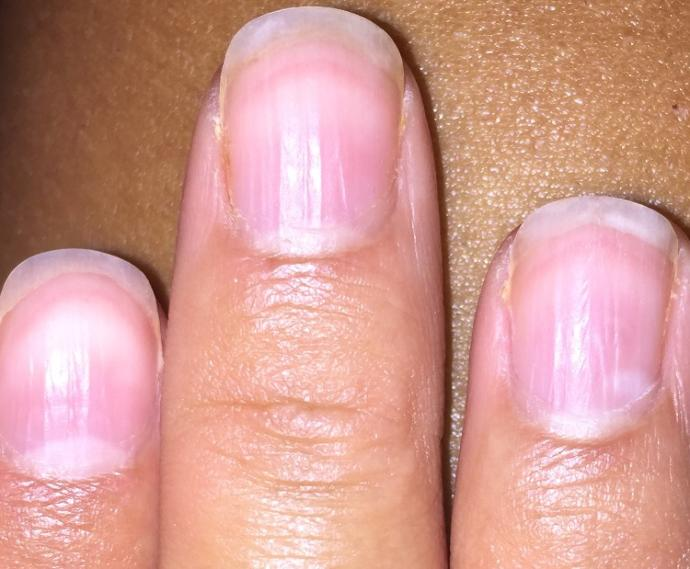 IS THERE SOMETHING WRONG WITH MY NAILS ? PIC?