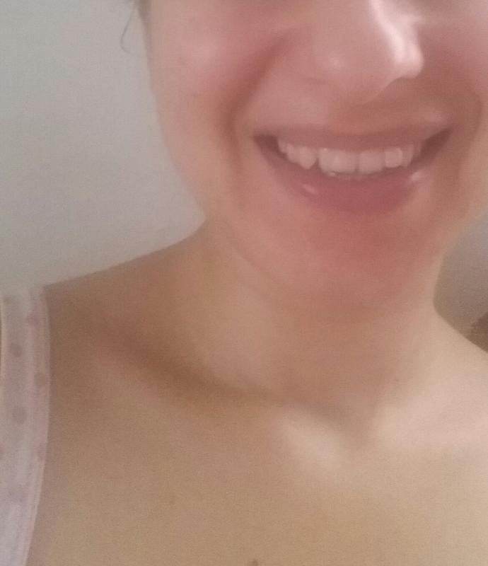 Is my smile ugly and disgusting :(?