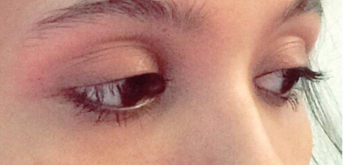Eyes?  What kind of eyes are these?