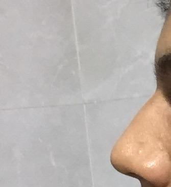 do i need a nose job?