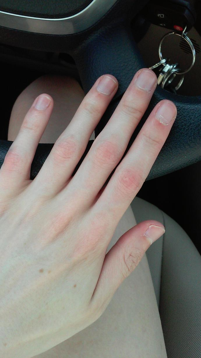 What can I do to improve my nails?