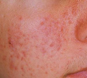 How girls got clear skin face?