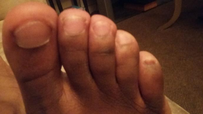 Does this look like toenail fongus or is this from a injury?