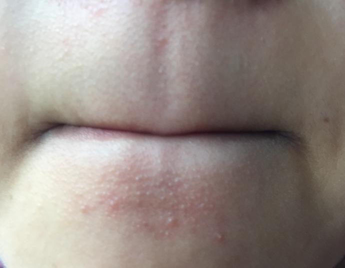 I can't get rid of these small pimples on my face?