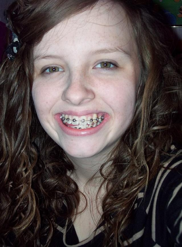 Girls, had my braces put on today, do they look bad?
