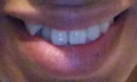 I need braces asap look at my teeth?