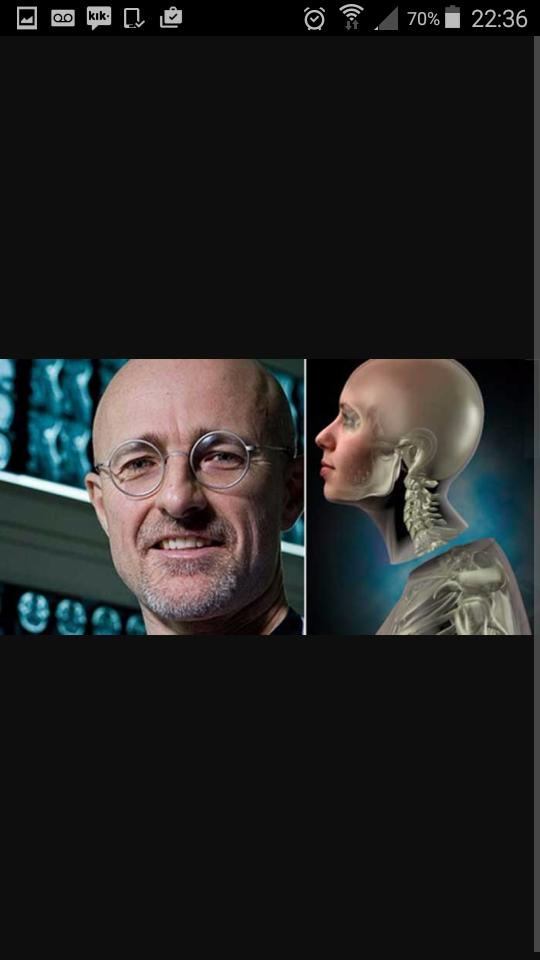 Anybody heard of the head transplant surgery planned to happen in 2017?