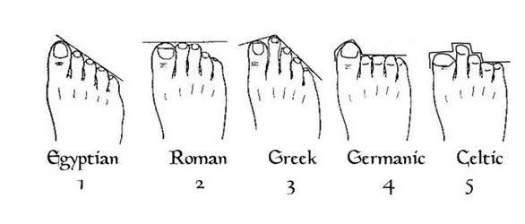 What is your feet type?