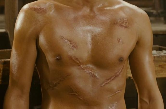 Hey Ladies, I'm self conscious about body scars, how to deal with them especially around girls?