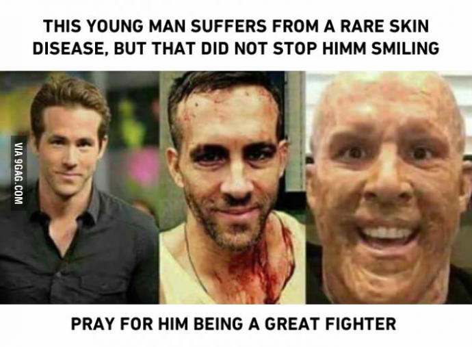 This man smiles despite having a rare skin desease. Could you do the same in his position?