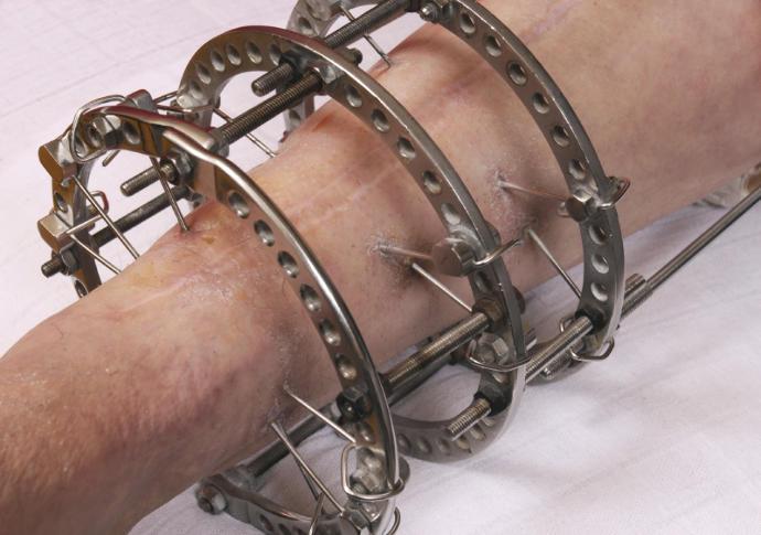 Should I get leg-lengthening surgery?