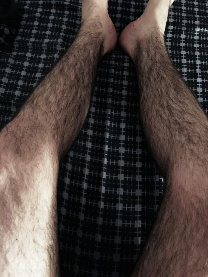 Are my legs sexually repulsive and ugly ? I should not wear shorts?