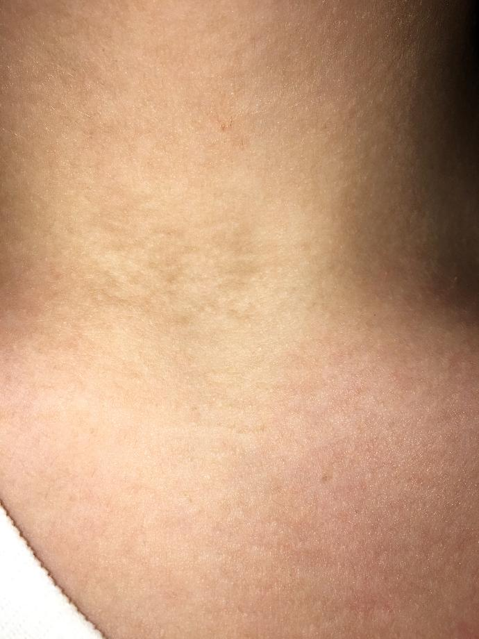 what is this on my neck?