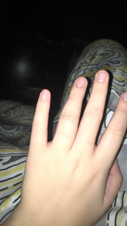 Jammed finger bad? - GirlsAskGuys
