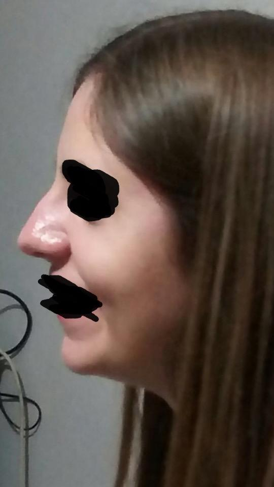 What do you think about this nose?