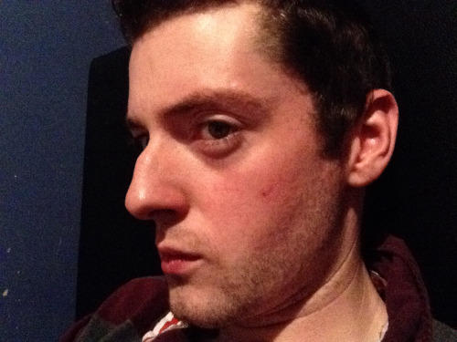 Girls, Is a big nose a deal breaker???