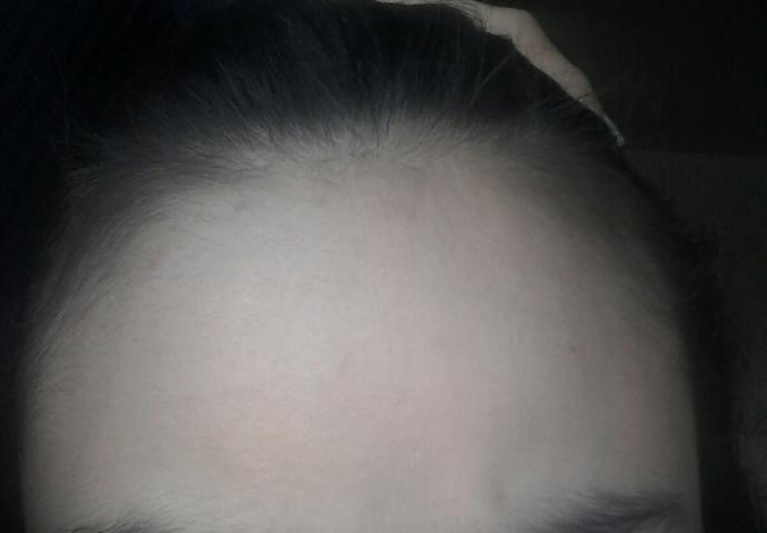 Is my hair thinning,am I going bald (pics)?