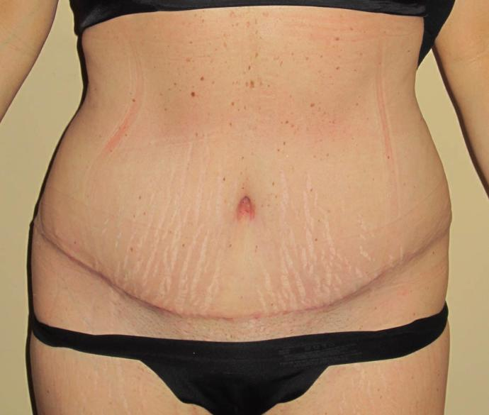 Guys, would you consider being with long term a woman who had a tummy tuck due to weight loss if you thought she was beautiful besides that?