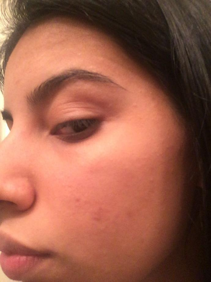 Girls, What could you recommend me that has worked for you to get rid of past acne marks ( dark spots) help?