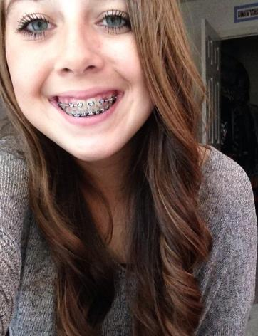 What do you think of girls with braces?