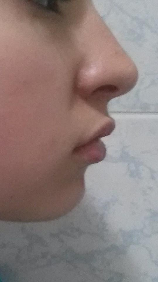 I think my chin is too small for my nose and face :( How can I get a long chin from natural ways?