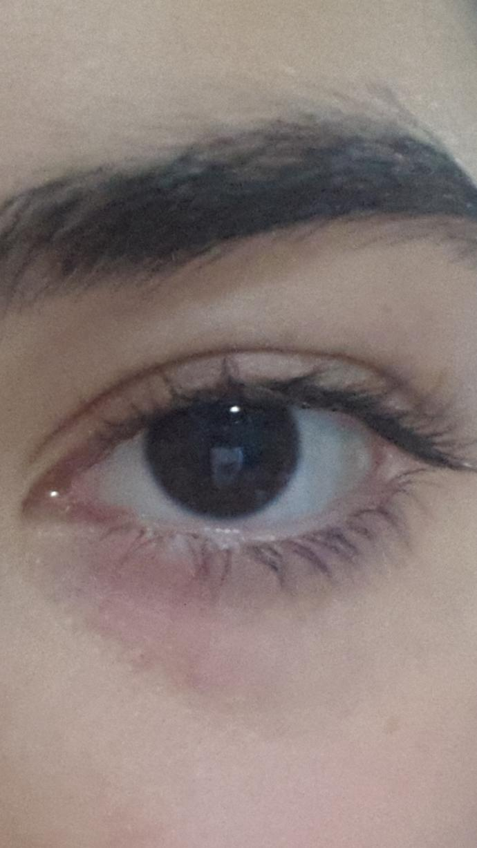 What do you think about my eyes,Do I need a concealer?