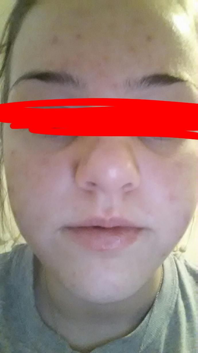 Don't hate on my pictures, but how to treat me cysts/ acne scars?