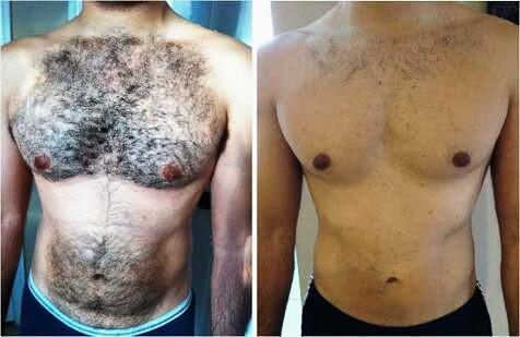 Does a man looks way better with his body hair removed?